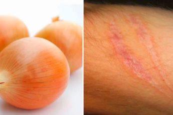 Как избавиться от морщин, шрамов и рубцов с помощью обычного лука